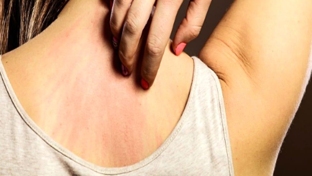 dieta per la dermatite atopica